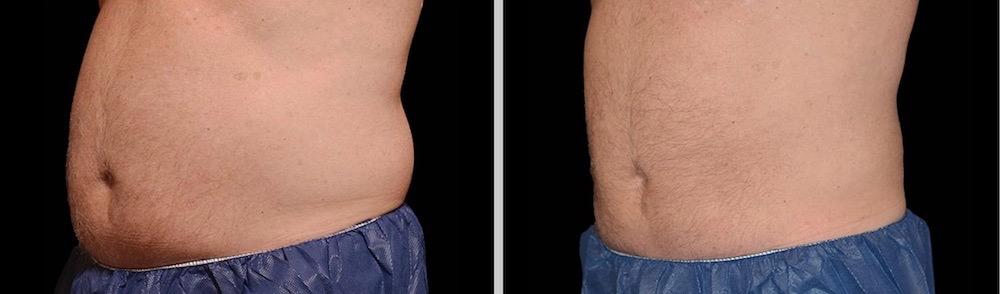 Antes y después tratamiento abdomen CoolSculpting en la Clinica Roso Rodigues