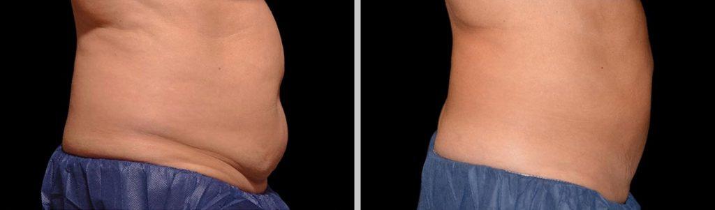 Antes y después tratamiento coolsculpting en abdomen de hombre en la clínica Roso Rodrigues