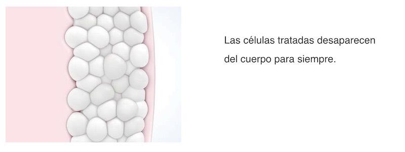 Criolipólisis en barcelona tratamiento coolsculpting