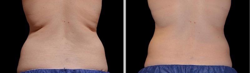 Antes y después eliminación grasa espalda clínica roso