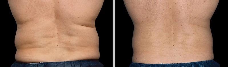 Eliminación de grasa localizada en flancos hombre después de Coolsculpting Clínica Roso Rodrigues