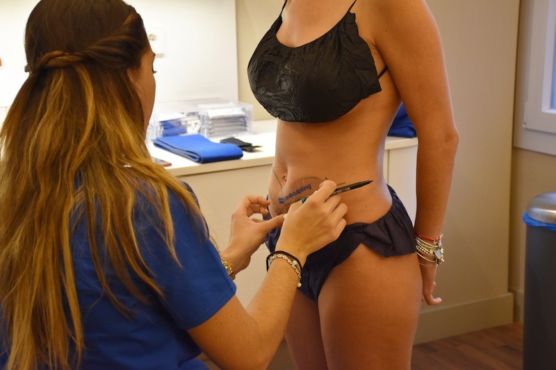 Tratamiento Coolsculpting abdomen Barcelona
