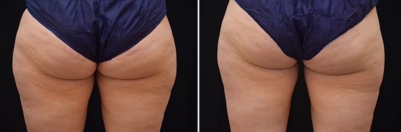 Antes y después del tratamiento CoolSculpting en Cartucheras Clinica Roso Rodrigues