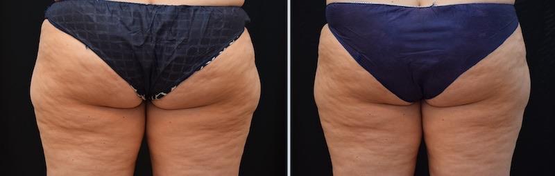 Antes y después del tratamiento Cartucheras Coolsculpting en cartucheras