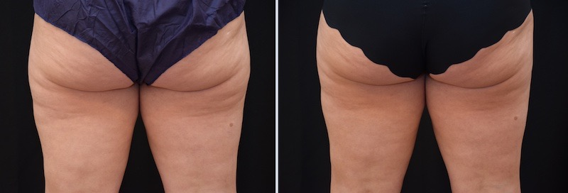 Antes y después cartucheras traramiento CoolSculpting Barcelona