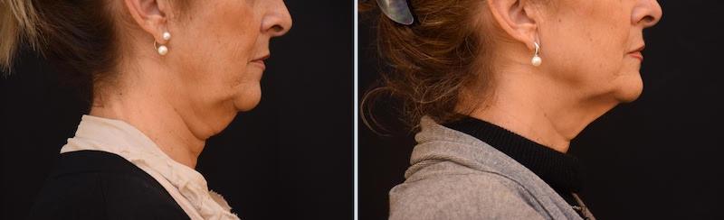 antes y después tratamiento papada - Clinica Roso Rodrigues