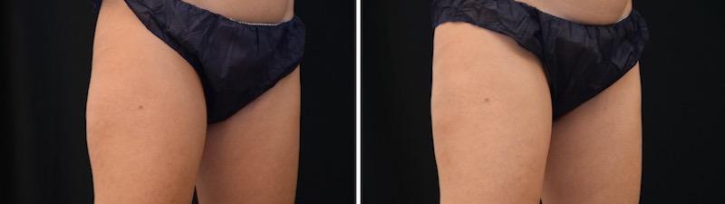 Antes y después cartucheras