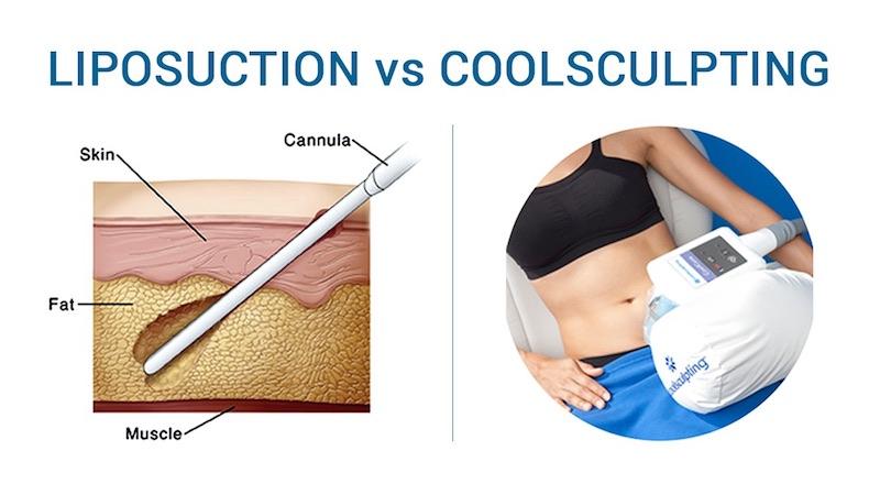 liposucción vs criolipólisis