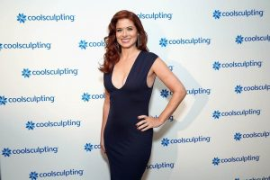 Coolculpting y Debra Messing